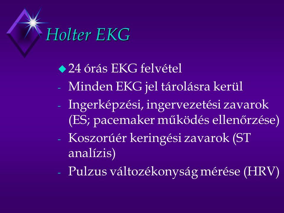 Holter EKG u 24 órás EKG felvétel - Minden EKG jel tárolásra kerül - Ingerképzési, ingervezetési zavarok (ES; pacemaker működés ellenőrzése) - Koszorúér keringési zavarok (ST analízis) - Pulzus változékonyság mérése (HRV)