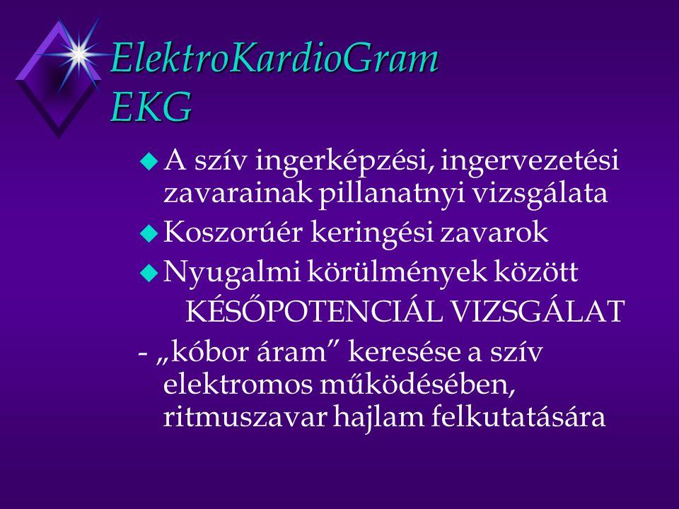 ElektroKardioGram EKG u A szív ingerképzési, ingervezetési zavarainak pillanatnyi vizsgálata u Koszorúér keringési zavarok u Nyugalmi körülmények közö