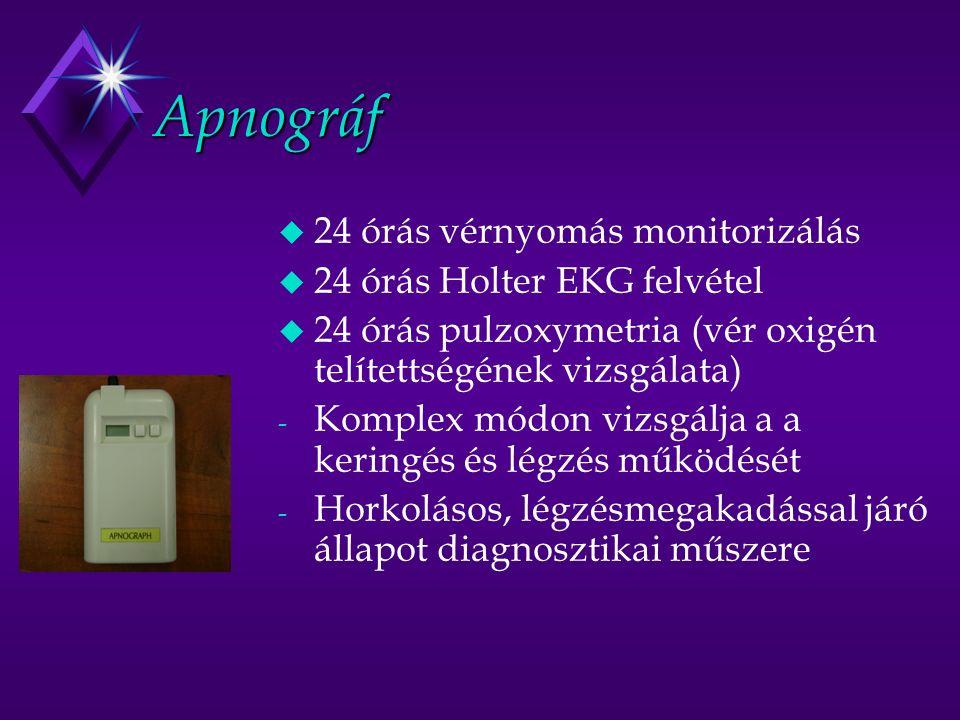 Apnográf u 24 órás vérnyomás monitorizálás u 24 órás Holter EKG felvétel u 24 órás pulzoxymetria (vér oxigén telítettségének vizsgálata) - Komplex módon vizsgálja a a keringés és légzés működését - Horkolásos, légzésmegakadással járó állapot diagnosztikai műszere