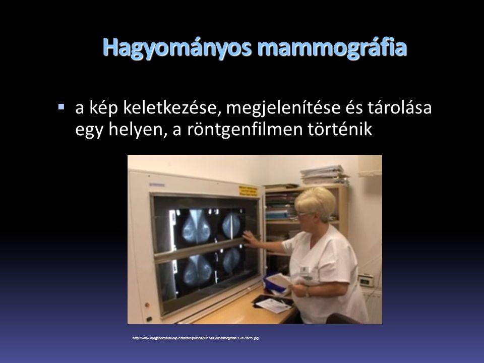 Hagyományos mammográfia  a kép keletkezése, megjelenítése és tárolása egy helyen, a röntgenfilmen történik http://www.diagnoscan.hu/wp-content/upload