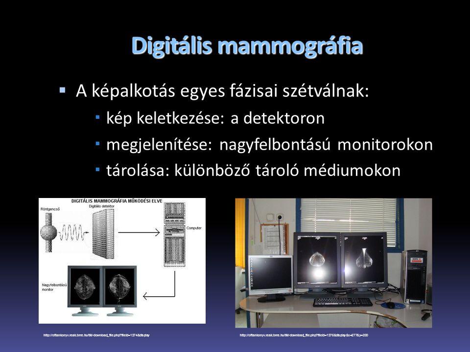 Digitális mammográfia  A képalkotás egyes fázisai szétválnak:  kép keletkezése: a detektoron  megjelenítése: nagyfelbontású monitorokon  tárolása: