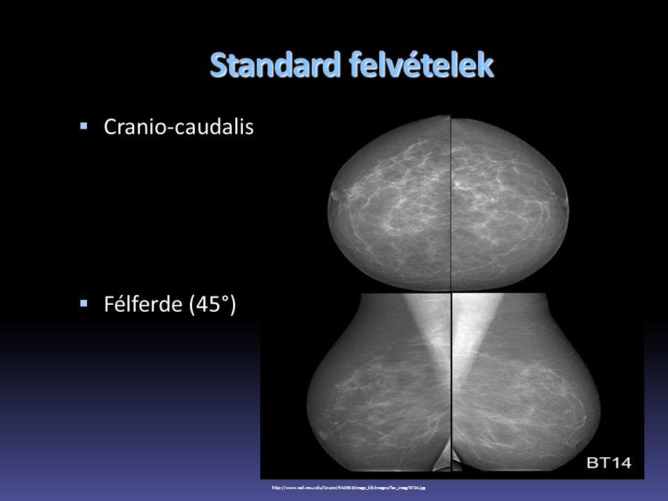 Standard felvételek  Cranio-caudalis  Félferde (45°) http://www.rad.msu.edu/Course/RAD553/image_lib/images/fac_imag/BT14.jpg