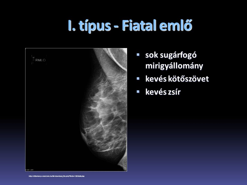 I. típus - Fiatal emlő  sok sugárfogó mirigyállomány  kevés kötőszövet  kevés zsír http://oftankonyv.reak.bme.hu/tiki-download_file.php?fileId=1285