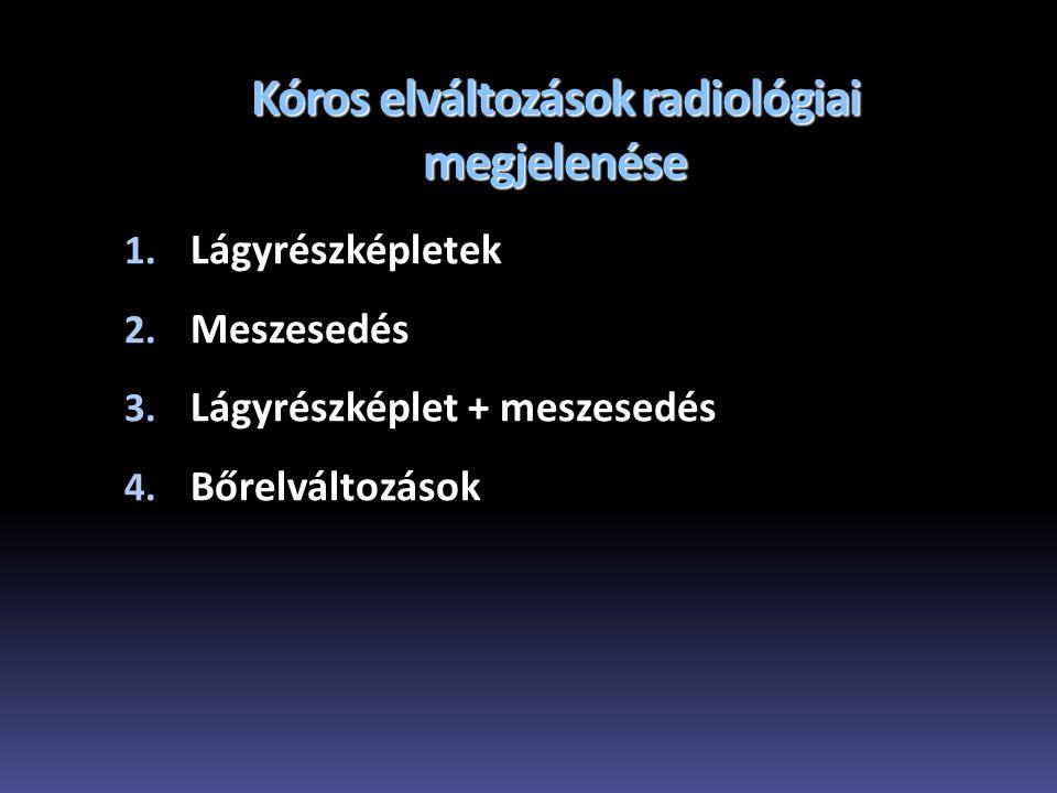 Kóros elváltozások radiológiai megjelenése 1. Lágyrészképletek 2. Meszesedés 3. Lágyrészképlet + meszesedés 4. Bőrelváltozások