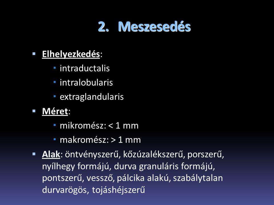 2. Meszesedés  Elhelyezkedés:  intraductalis  intralobularis  extraglandularis  Méret:  mikromész: < 1 mm  makromész: > 1 mm  Alak: öntvénysze
