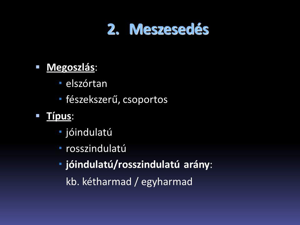2. Meszesedés  Megoszlás:  elszórtan  fészekszerű, csoportos  Típus:  jóindulatú  rosszindulatú  jóindulatú/rosszindulatú arány: kb. kétharmad