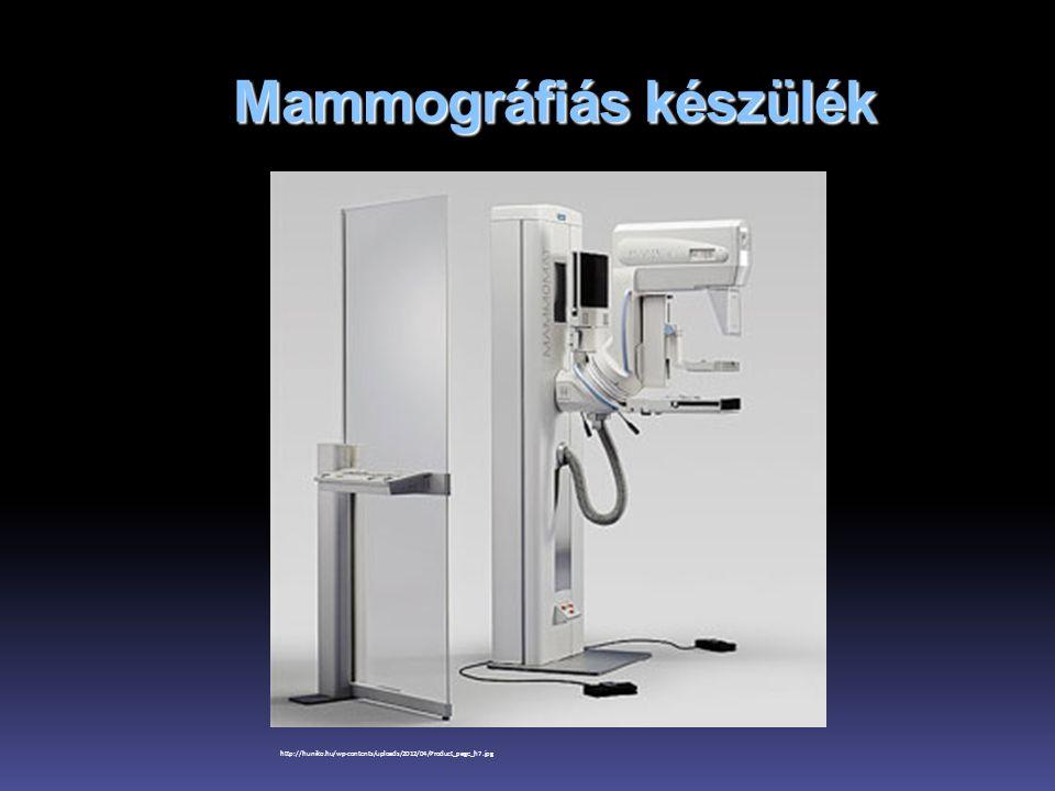 Mammográfiás képalkotás R.M.Rangayyan, J.E.L. Desautels, F.J.