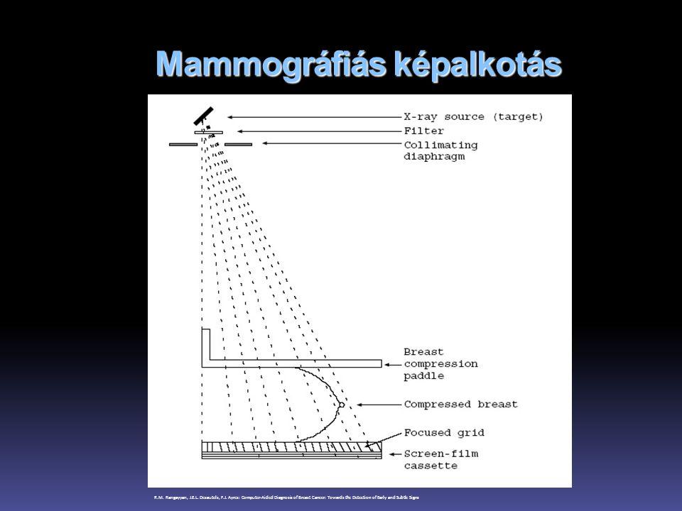 Mammográfiás képalkotás R.M. Rangayyan, J.E.L. Desautels, F.J. Ayres: Computer-Aided Diagnosis of Breast Cancer: Towards the Detection of Early and Su