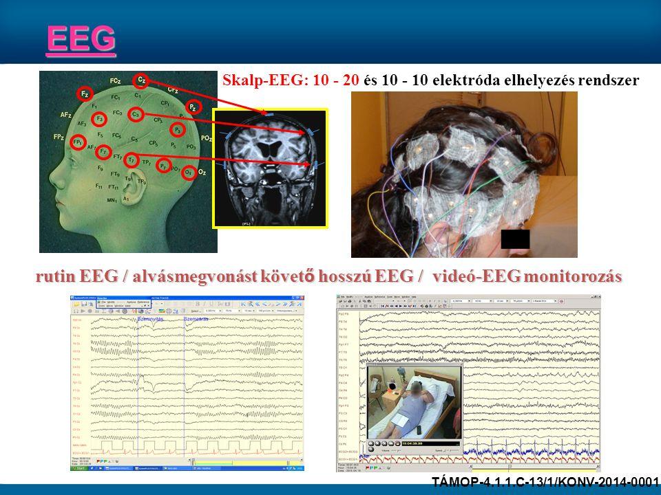 Skalp-EEG: 10 - 20 és 10 - 10 elektróda elhelyezés rendszer rutin EEG / alvásmegvonást követ ő hosszú EEG / videó-EEG monitorozás EEG TÁMOP-4.1.1.C-13