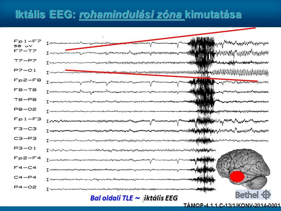 Bal oldali TLE ~ i iktális EEG Iktális EEG: rohamindulási zóna kimutatása TÁMOP-4.1.1.C-13/1/KONV-2014-0001
