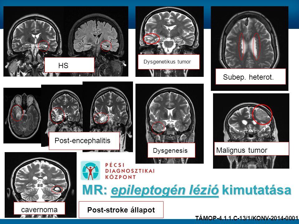 HS Post-stroke állapot Dysgenesis Subep. heterot. cavernoma MR: epileptogén lézió kimutatása Dysgenetikus tumor Malignus tumor Post-encephalitis TÁMOP