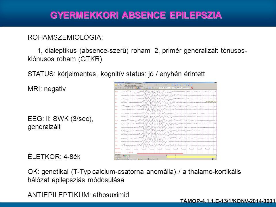 ROHAMSZEMIOLÓGIA: 1, dialeptikus (absence-szerű) roham 2, primér generalizált tónusos- klónusos roham (GTKR) STATUS: kórjelmentes, kognitív status: jó / enyhén érintett MRI: negativ EEG: ii: SWK (3/sec), generalzált ÉLETKOR: 4-8ék OK: genetikai (T-Typ calcium-csatorna anomália) / a thalamo-kortikális hálózat epilepsziás módosulása ANTIEPILEPTIKUM: ethosuximid GYERMEKKORI ABSENCE EPILEPSZIA TÁMOP-4.1.1.C-13/1/KONV-2014-0001