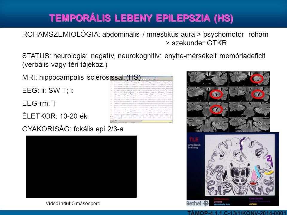 ROHAMSZEMIOLÓGIA: abdominális / mnestikus aura > psychomotor roham > szekunder GTKR STATUS: neurologia: negatív, neurokognitiv: enyhe-mérsékelt memóriadeficit (verbális vagy téri tájékoz.) MRI: hippocampalis sclerosissal (HS) EEG: ii: SW T; i: EEG-rm: T ÉLETKOR: 10-20 ék GYAKORISÁG: fokális epi 2/3-a TEMPORÁLIS LEBENY EPILEPSZIA (HS) TÁMOP-4.1.1.C-13/1/KONV-2014-0001 Videó indul: 5 másodperc