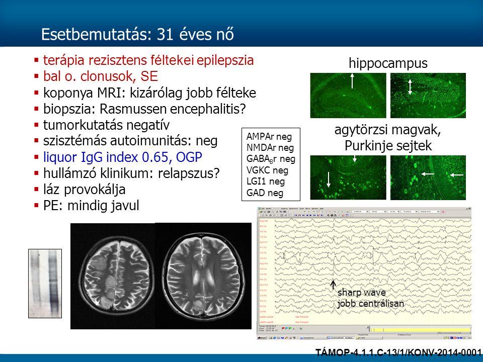 Esetbemutatás: 31 éves nő  terápia rezisztens féltekei epilepszia  bal o. clonusok, SE  koponya MRI: kizárólag jobb félteke  biopszia: Rasmussen e
