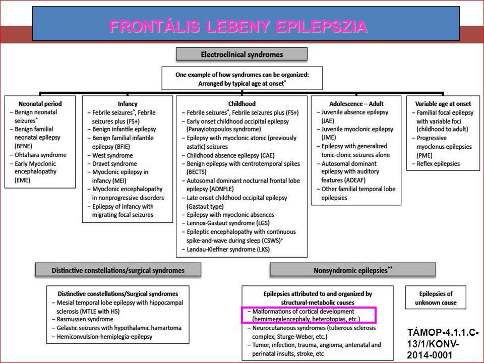 FRONTÁLIS LEBENY EPILEPSZIA TÁMOP-4.1.1.C- 13/1/KONV- 2014-0001