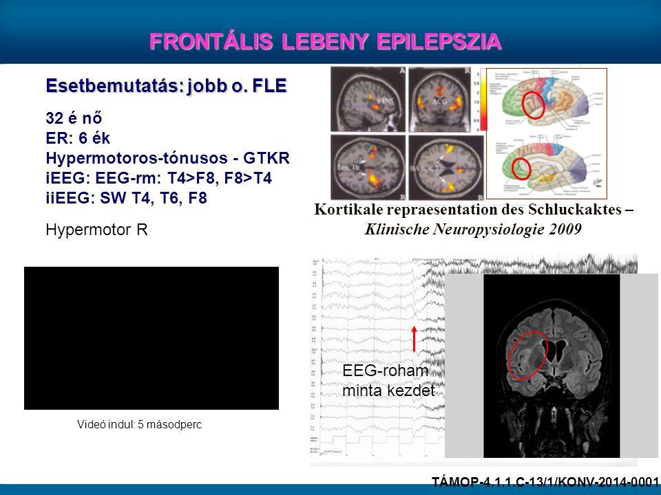 FRONTÁLIS LEBENY EPILEPSZIA Esetbemutatás: jobb o. FLE 32 é nő ER: 6 ék Hypermotoros-tónusos - GTKR iEEG: EEG-rm: T4>F8, F8>T4 iiEEG: SW T4, T6, F8 Ko
