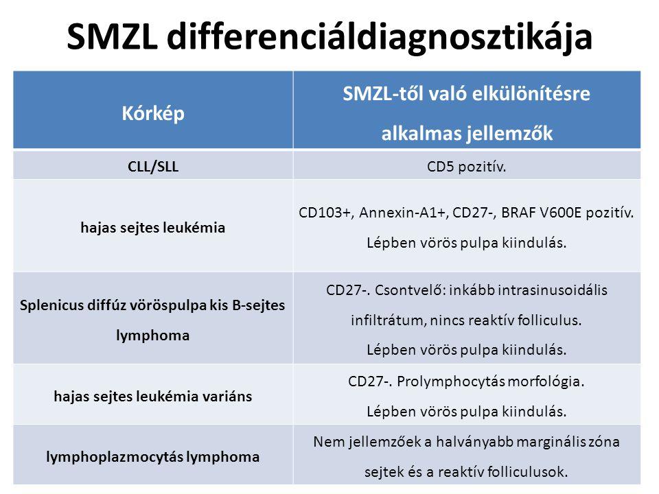 SMZL differenciáldiagnosztikája Kórkép SMZL-től való elkülönítésre alkalmas jellemzők CLL/SLLCD5 pozitív. hajas sejtes leukémia CD103+, Annexin-A1+, C