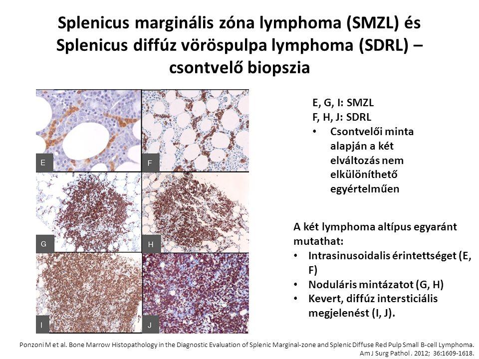 Splenicus marginális zóna lymphoma (SMZL) és Splenicus diffúz vöröspulpa lymphoma (SDRL) – csontvelő biopszia E, G, I: SMZL F, H, J: SDRL Csontvelői m