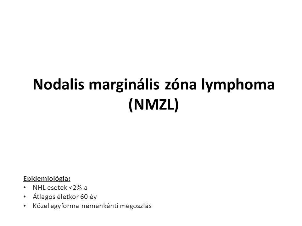 Nodalis marginális zóna lymphoma (NMZL) Epidemiológia: NHL esetek <2%-a Átlagos életkor 60 év Közel egyforma nemenkénti megoszlás