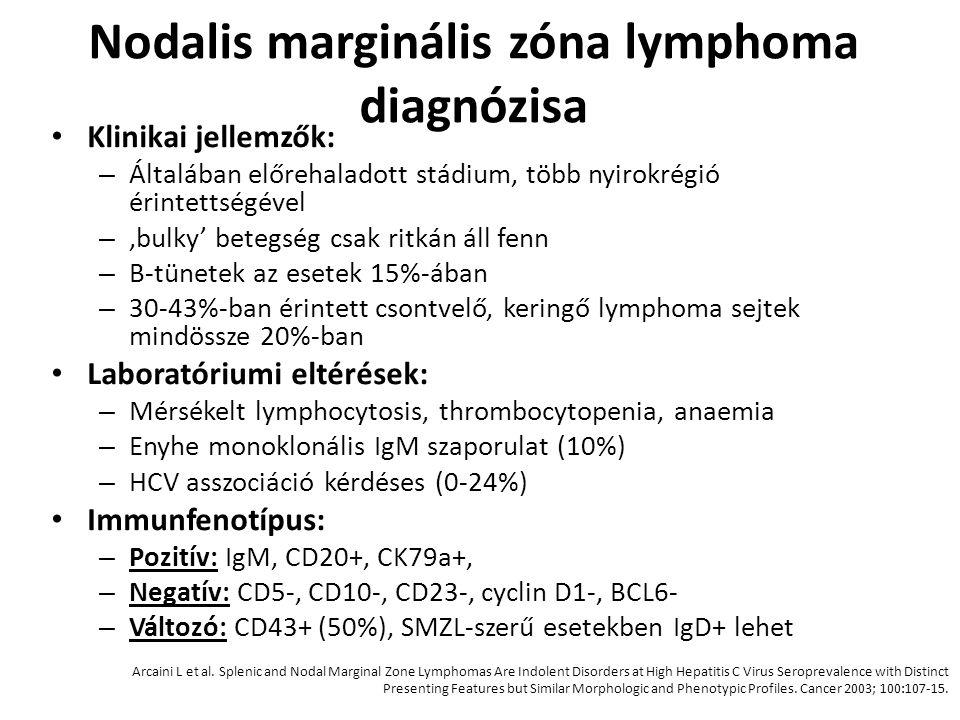 Nodalis marginális zóna lymphoma diagnózisa Klinikai jellemzők: – Általában előrehaladott stádium, több nyirokrégió érintettségével – 'bulky' betegség
