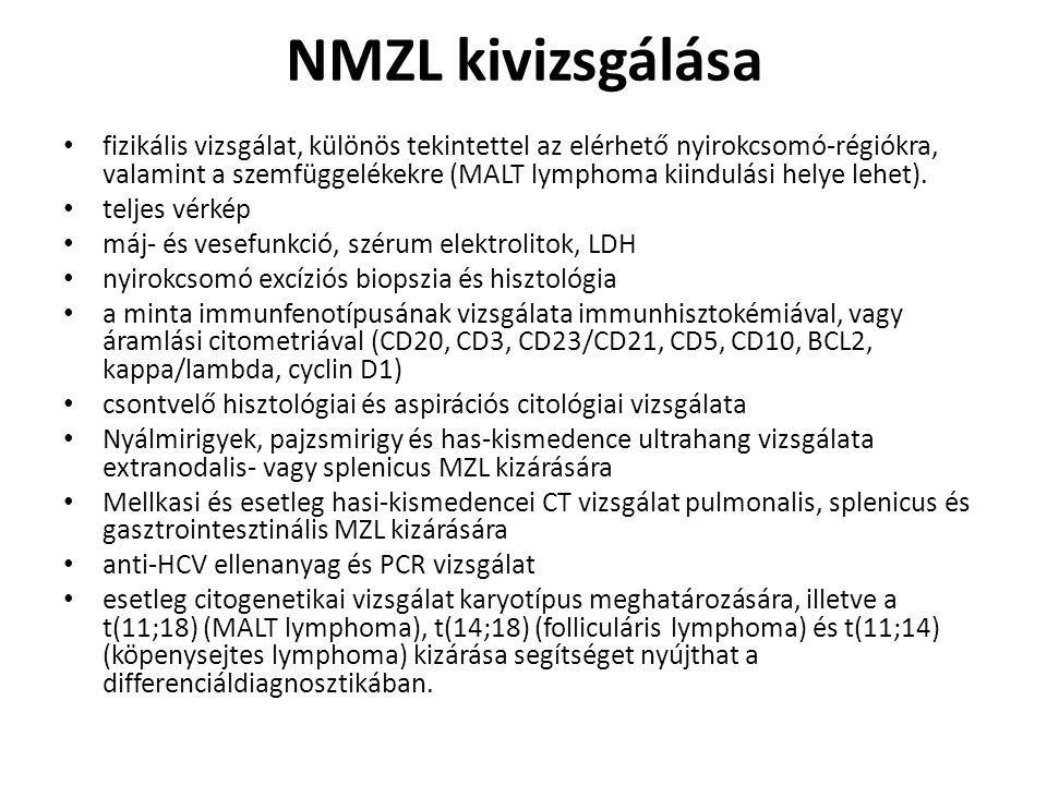 NMZL kivizsgálása fizikális vizsgálat, különös tekintettel az elérhető nyirokcsomó-régiókra, valamint a szemfüggelékekre (MALT lymphoma kiindulási hel