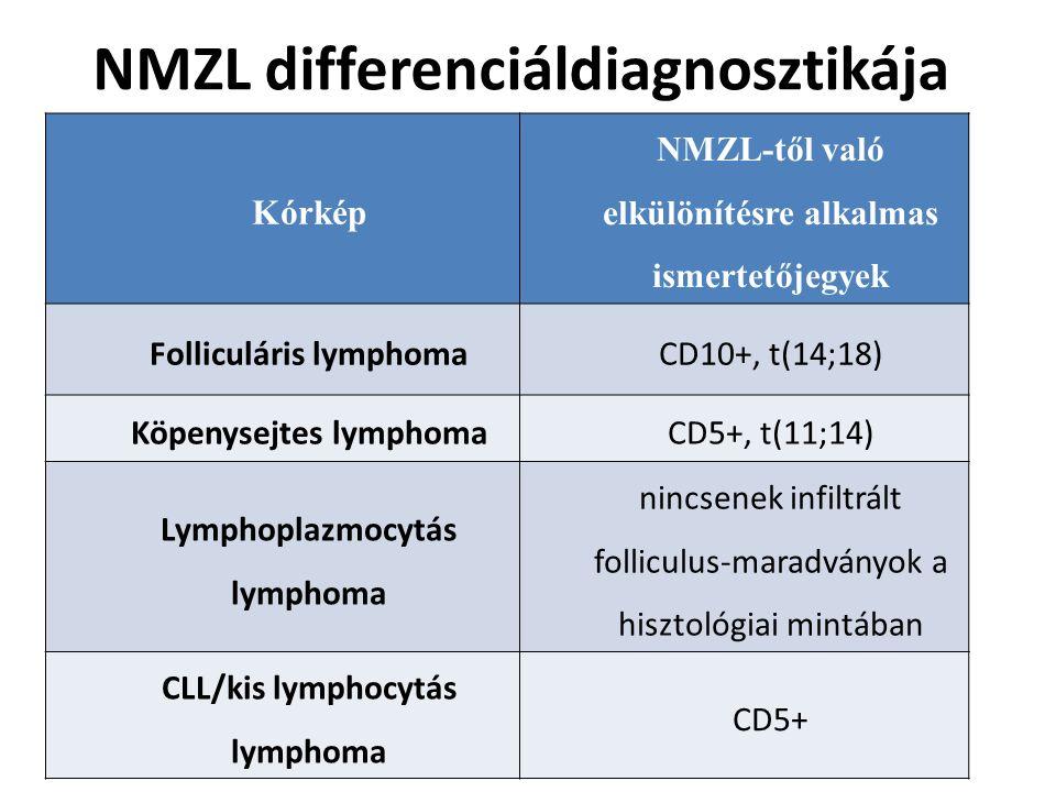NMZL differenciáldiagnosztikája Kórkép NMZL-től való elkülönítésre alkalmas ismertetőjegyek Folliculáris lymphomaCD10+, t(14;18) Köpenysejtes lymphoma
