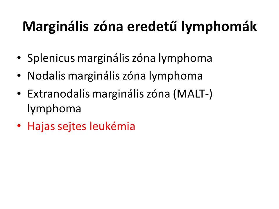 Marginális zóna eredetű lymphomák Splenicus marginális zóna lymphoma Nodalis marginális zóna lymphoma Extranodalis marginális zóna (MALT-) lymphoma Ha