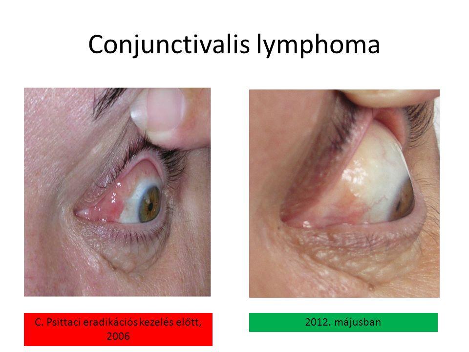 Conjunctivalis lymphoma C. Psittaci eradikációs kezelés előtt, 2006 2012. májusban