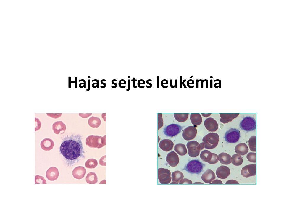 Hajas sejtes leukémia