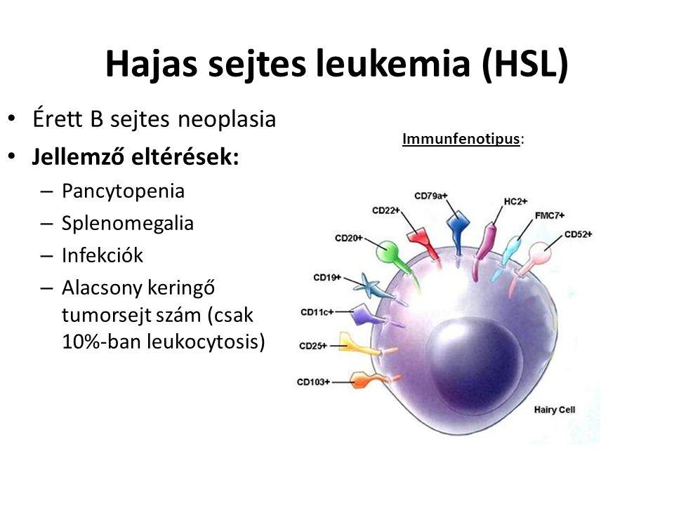 Hajas sejtes leukemia (HSL) Immunfenotipus: Érett B sejtes neoplasia Jellemző eltérések: – Pancytopenia – Splenomegalia – Infekciók – Alacsony keringő