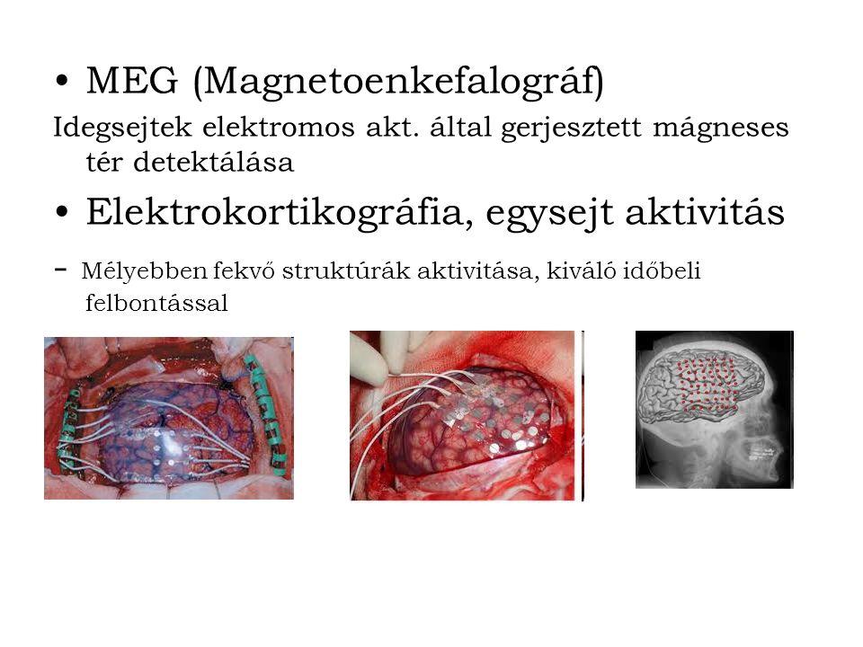 MEG (Magnetoenkefalográf) Idegsejtek elektromos akt.