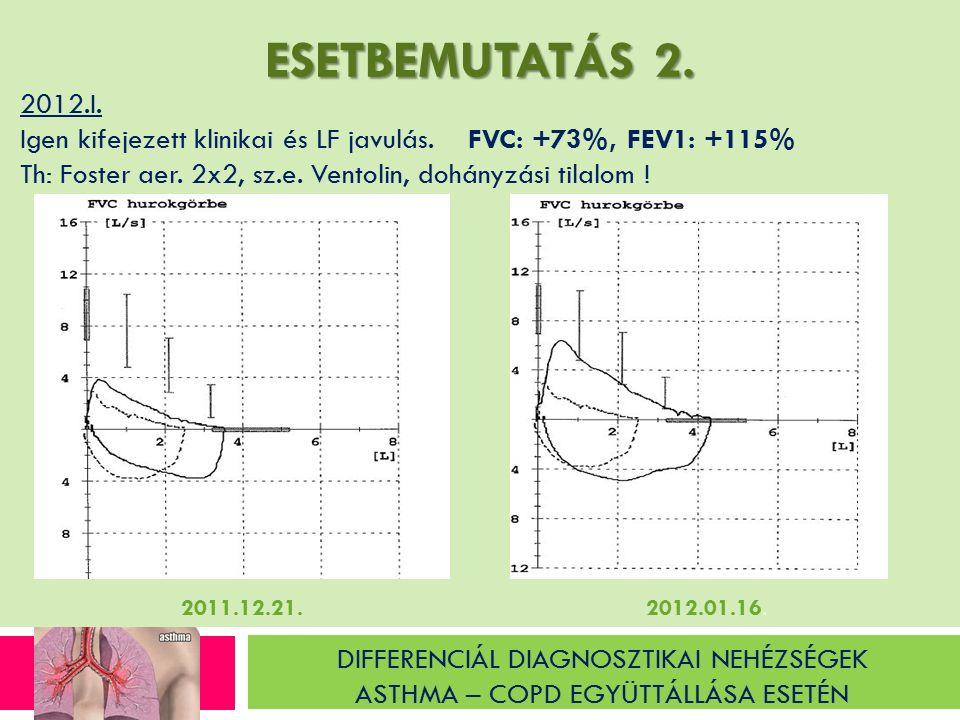 DIFFERENCIÁL DIAGNOSZTIKAI NEHÉZSÉGEK ASTHMA – COPD EGYÜTTÁLLÁSA ESETÉN ESETBEMUTATÁS 2.