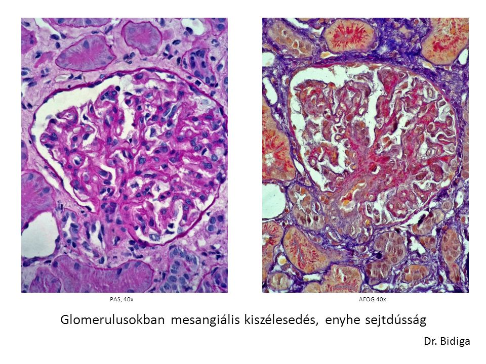 PAS, 40x Glomerulusokban mesangiális kiszélesedés, enyhe sejtdússág Dr. Bidiga AFOG 40x