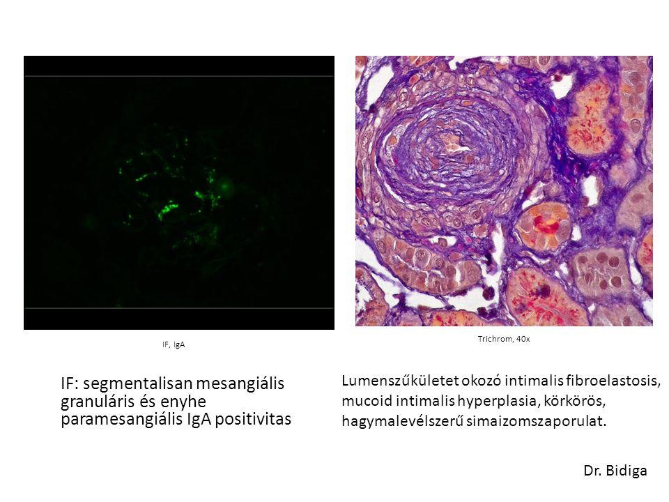 IF: segmentalisan mesangiális granuláris és enyhe paramesangiális IgA positivitas IF, IgA Dr. Bidiga Trichrom, 40x Lumenszűkületet okozó intimalis fib