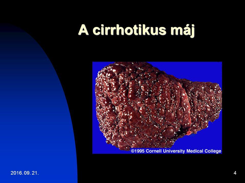 HRS: pathomechanismus Cirrhosis Májtranszplantáció Portalis hypertensio TIPS Splanchnicus vasodilatatio Vasoconstrictorok Csökkent effektiv intravasalis volumen Albumin Antinatriureticus/vasoconstrictor rendszerek aktivációja Renalis vasoconstrictio Hepatorenalis syndroma 2016.