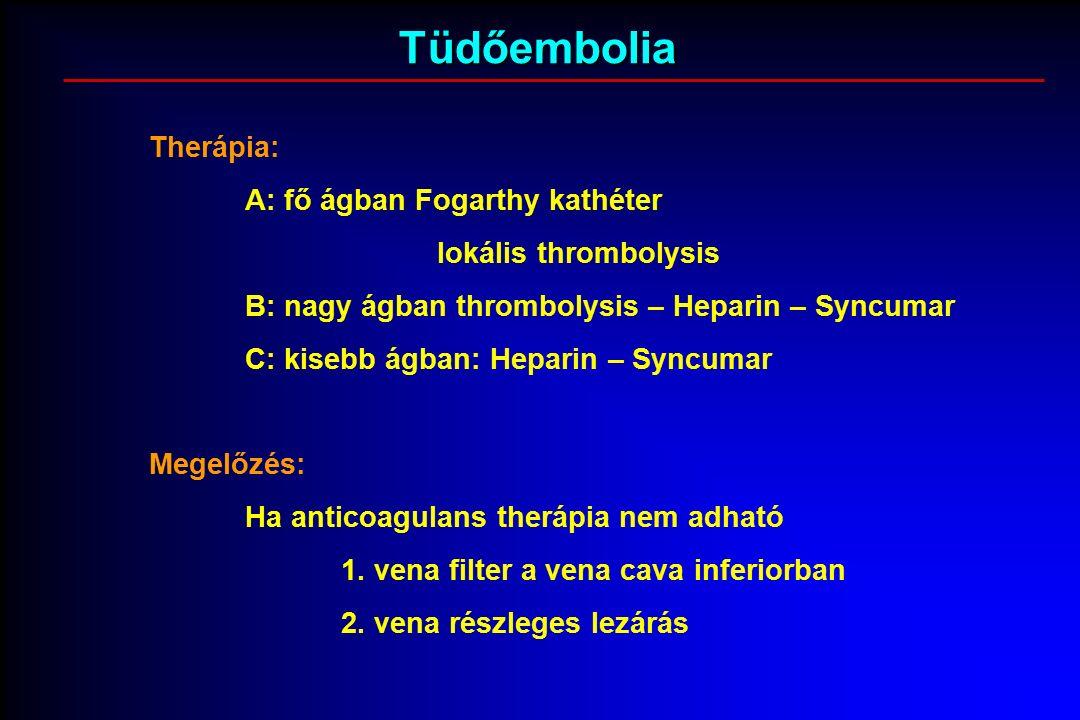 Tüdőembolia Therápia: A: fő ágban Fogarthy kathéter lokális thrombolysis B: nagy ágban thrombolysis – Heparin – Syncumar C: kisebb ágban: Heparin – Syncumar Megelőzés: Ha anticoagulans therápia nem adható 1.