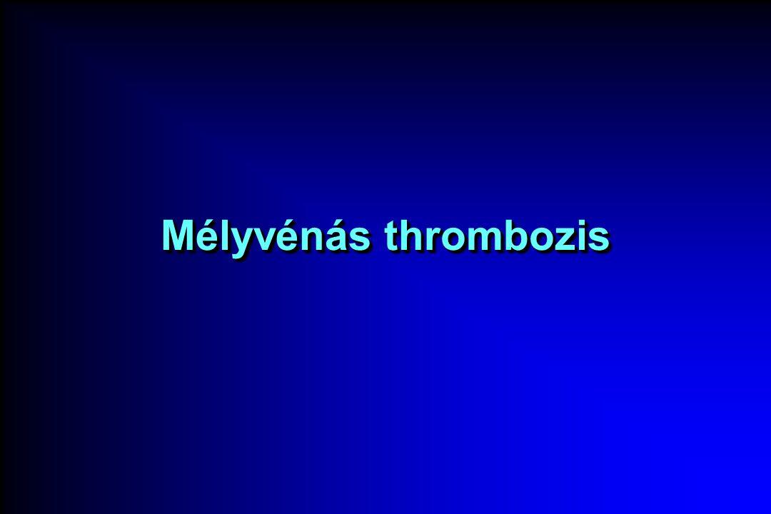 Mélyvénás thrombozis
