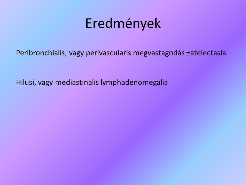 Eredmények Peribronchialis, vagy perivascularis megvastagodás ±atelectasia Hilusi, vagy mediastinalis lymphadenomegalia