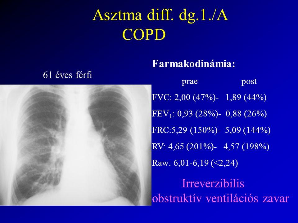 Asztma diff. dg.1./A COPD Farmakodinámia: praepost FVC: 2,00 (47%)- 1,89 (44%) FEV 1 : 0,93 (28%)- 0,88 (26%) FRC:5,29 (150%)- 5,09 (144%) RV: 4,65 (2