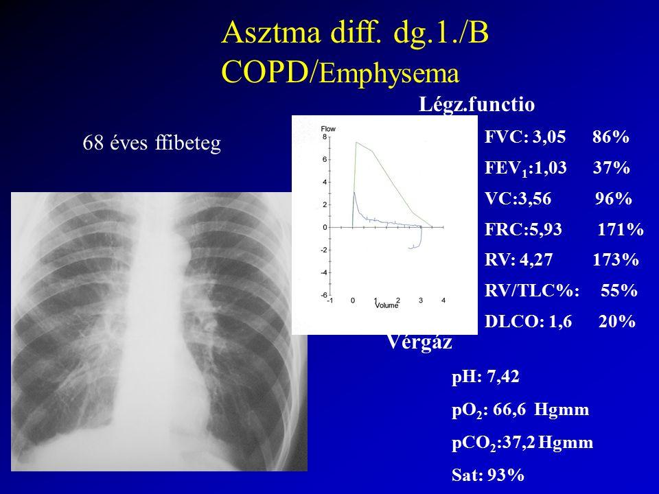 Vérgáz pH: 7,42 pO 2 : 66,6 Hgmm pCO 2 :37,2 Hgmm Sat: 93% Légz.functio FVC: 3,05 86% FEV 1 :1,03 37% VC:3,56 96% FRC:5,93 171% RV: 4,27 173% RV/TLC%: 55% DLCO: 1,6 20% Asztma diff.