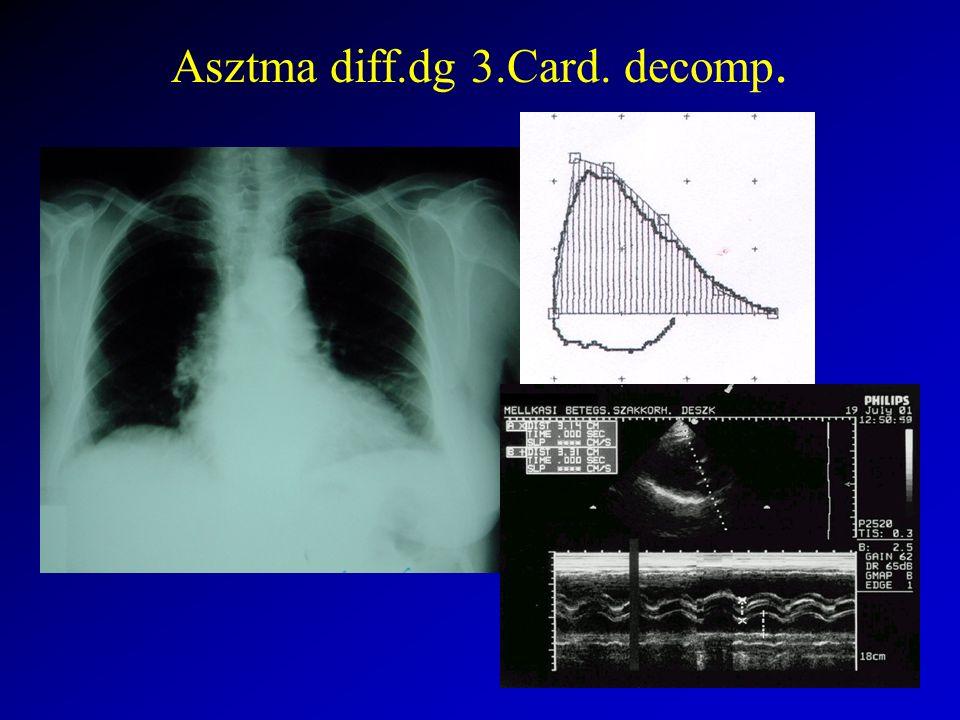 Asztma diff.dg 3.Card. decomp.