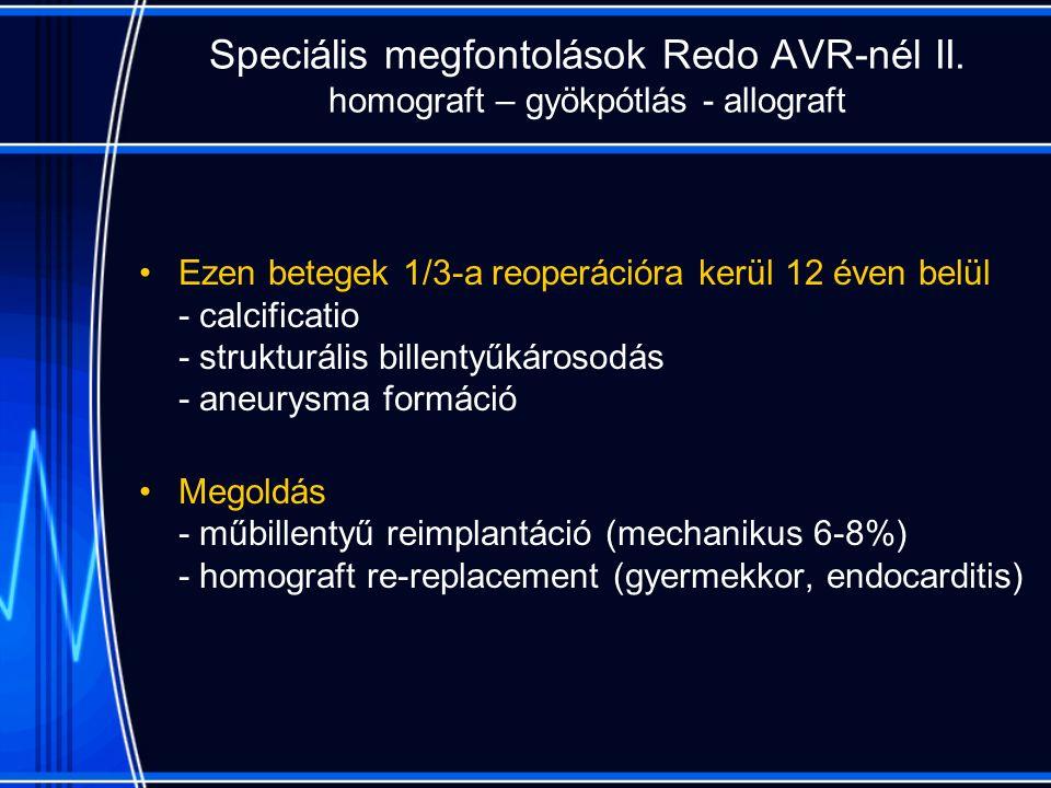 Speciális megfontolások Redo AVR-nél II.