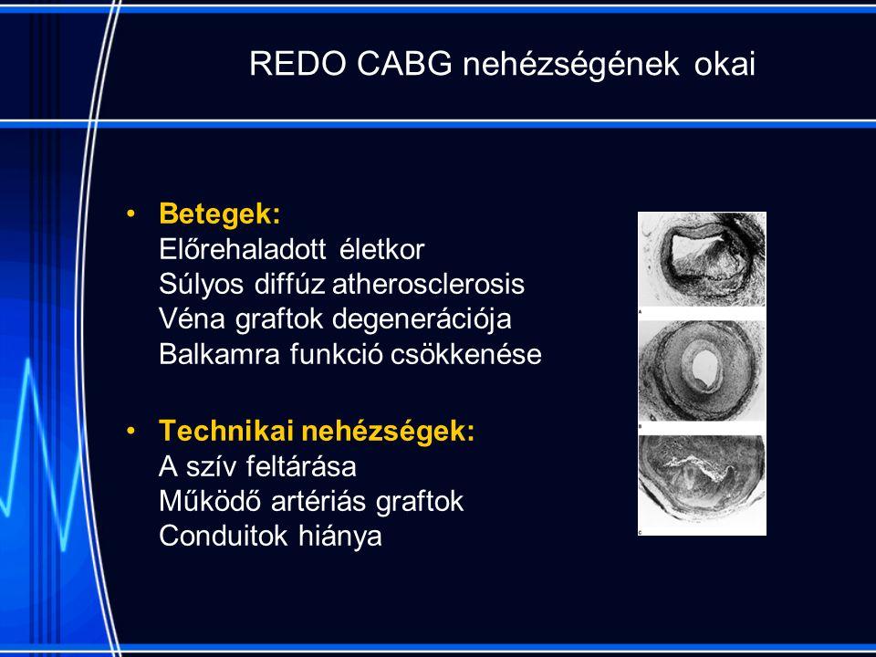 REDO CABG nehézségének okai Betegek: Előrehaladott életkor Súlyos diffúz atherosclerosis Véna graftok degenerációja Balkamra funkció csökkenése Technikai nehézségek: A szív feltárása Működő artériás graftok Conduitok hiánya