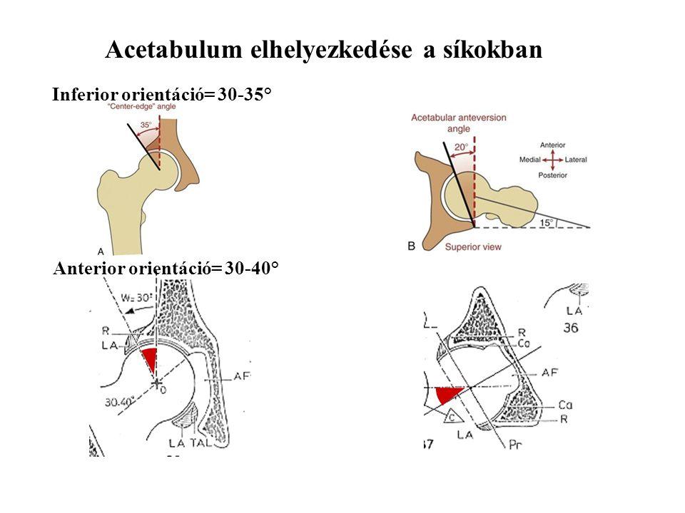 Acetabulum elhelyezkedése a síkokban Inferior orientáció= 30-35° Anterior orientáció= 30-40°
