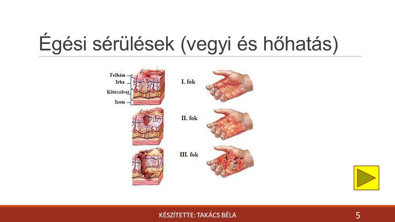 Égési sérülések (vegyi és hőhatás) KÉSZÍTETTE: TAKÁCS BÉLA 5