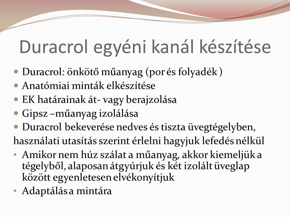Duracrol egyéni kanál készítése Duracrol: önkötő műanyag (por és folyadék ) Anatómiai minták elkészítése EK határainak át- vagy berajzolása Gipsz –műanyag izolálása Duracrol bekeverése nedves és tiszta üvegtégelyben, használati utasítás szerint érlelni hagyjuk lefedés nélkül Amikor nem húz szálat a műanyag, akkor kiemeljük a tégelyből, alaposan átgyúrjuk és két izolált üveglap között egyenletesen elvékonyítjuk Adaptálás a mintára