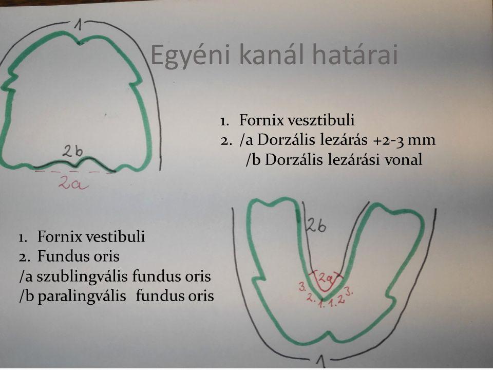 Egyéni kanál határai 1.Fornix vesztibuli 2./a Dorzális lezárás +2-3 mm /b Dorzális lezárási vonal 1.Fornix vestibuli 2.Fundus oris /a szublingvális fundus oris /b paralingvális fundus oris