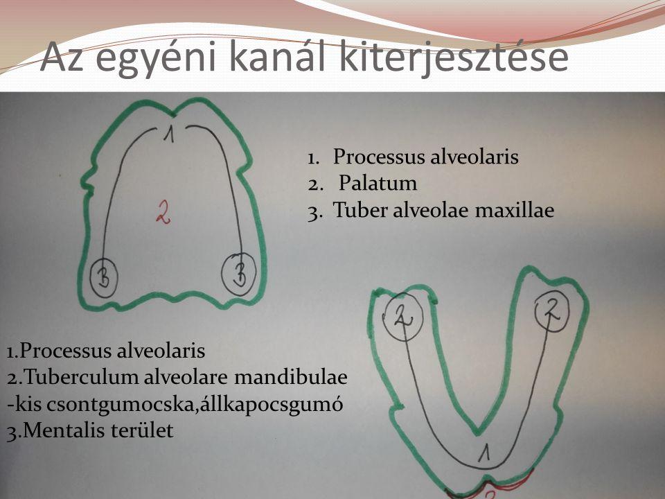 Az egyéni kanál kiterjesztése 1.Processus alveolaris 2.Tuberculum alveolare mandibulae -kis csontgumocska,állkapocsgumó 3.Mentalis terület 1.Processus alveolaris 2.