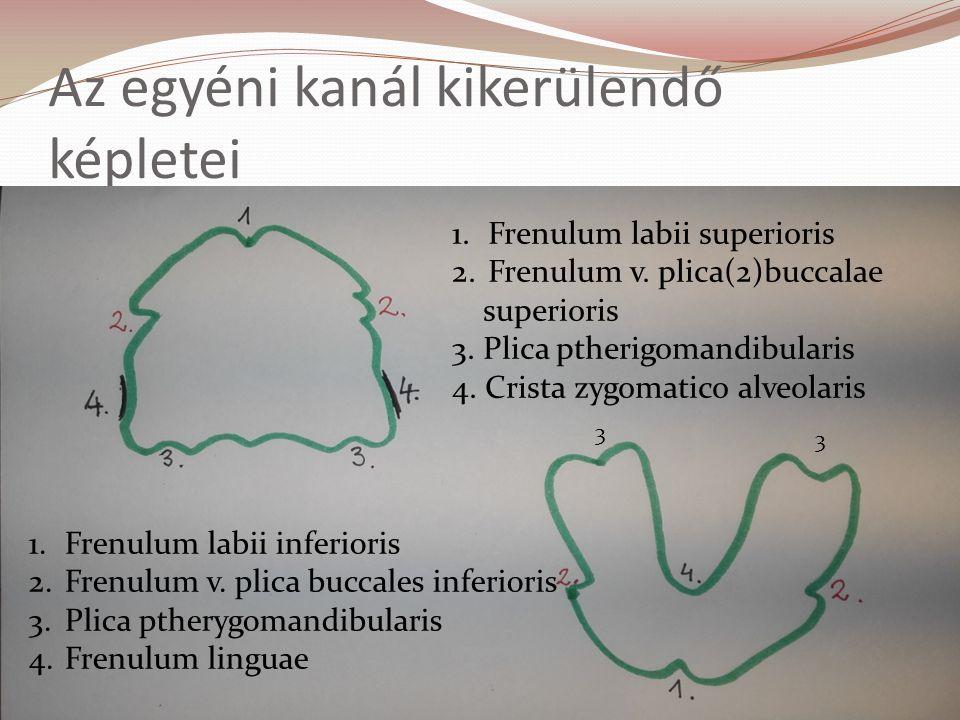 Az egyéni kanál kikerülendő képletei 1.Frenulum labii superioris 2.Frenulum v.