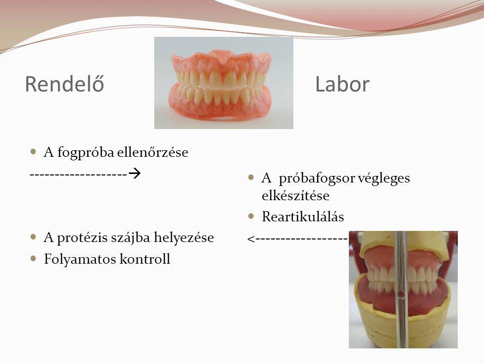 RendelőLabor A fogpróba ellenőrzése -------------------  A protézis szájba helyezése Folyamatos kontroll A próbafogsor végleges elkészítése Reartikulálás <------------------